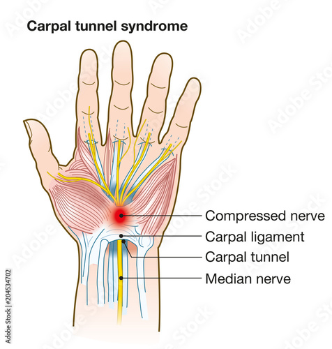Carpal tunnel syndrome, anatomy, medical illustration with caption ...