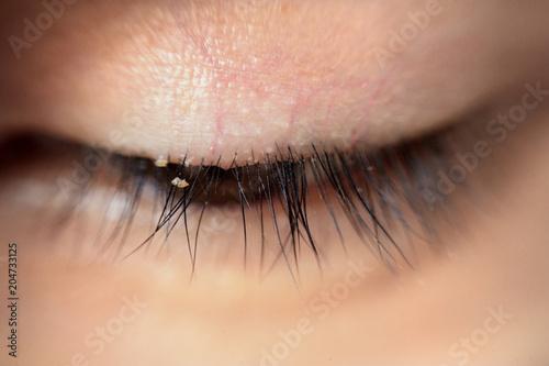 Photo close up severe conjunctivitis from eyelash mites