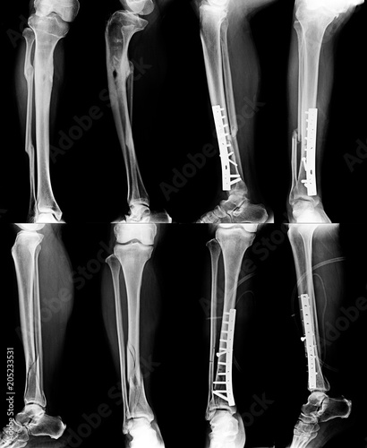 leg fracture x-ray and fixed in content with gray tone - Buy