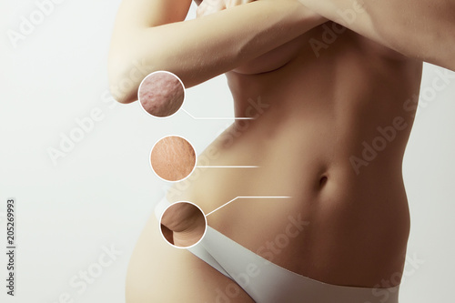 Fototapeta  woman  body before and after liposuction