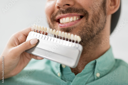 medicine, dentistry and healthcare concept - close up of dentist with tooth color samples choosing shade for male patient teeth at dental clinic - 205417194
