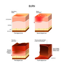 Skin Burn. Four Degrees Of Burns.