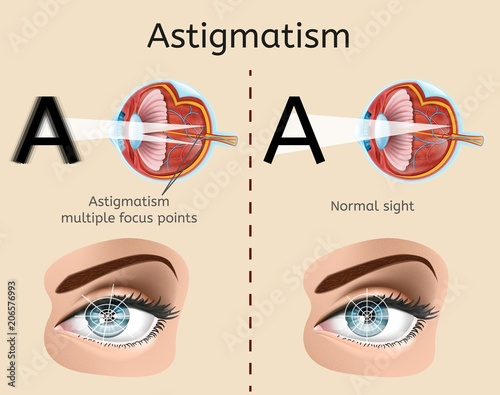 Astigmatism Vector Diagram with Human Eye Cross Section Anatomical ...