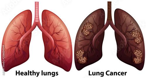Obraz Human Anatomy of Lung Condition - fototapety do salonu