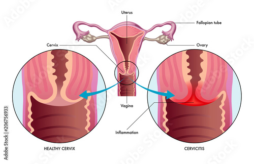 Fotografia, Obraz vector medical illustration of the condition cervicitis showing healthy cervix v