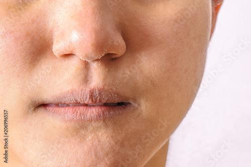 Cuadros en Lienzo Allergic women have eczema dry nose and lips on winter season closeup