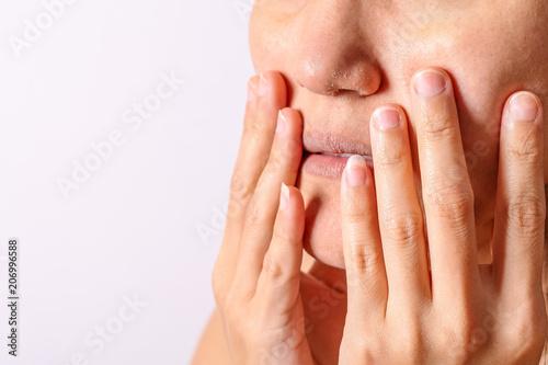Allergic women have eczema dry nose and lips on winter season closeup Fototapet