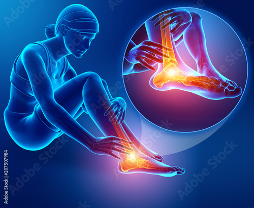 3d illustration of Female foot with ankle pain Wallpaper Mural