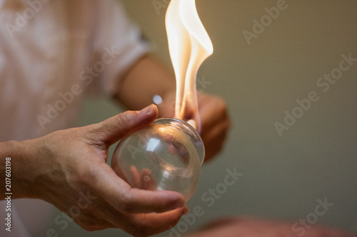 Woman preparing glass cup with flame for cupping therapy for pain relief Wallpaper Mural
