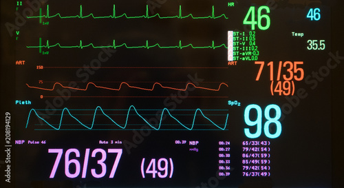 Valokuva  Monitor with Bradycardia on the ECG and Hypotension on the red arterial line