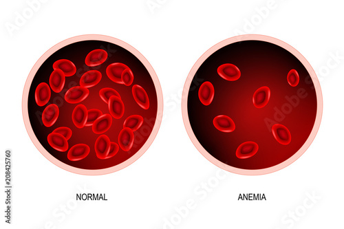 Photo Anemia. blood of healthy human and blood vessel with anemia.