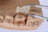 Keramikinlay vor dem Einsetzen in den natürlichen Zahn