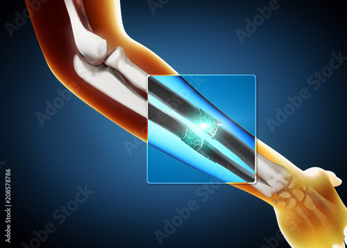 Fotografía  3d illustration of a x-ray image of a broken ulna and radius bone