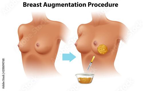 Photo A Set of Female Breast Augmentation