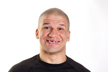 Bald Man Is Smiling A Toothles...