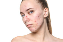 Young Woman With Acne Problem On White Background