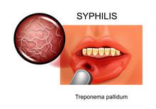 Syphilis. Chancre. Treponema P...