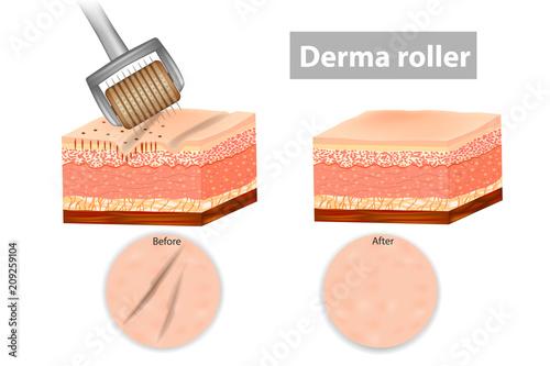 Fotografía  Derma roller or Meso-roller