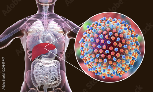 Obraz Hepatitis C virus infection medical concept, 3D illustration - fototapety do salonu