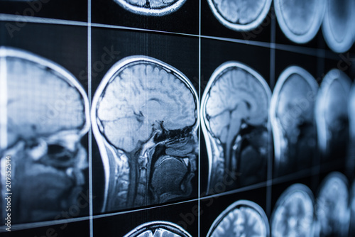 X-ray of the head and brain of a person Canvas Print