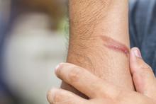 Burning Skin On Arm, Injury Fr...