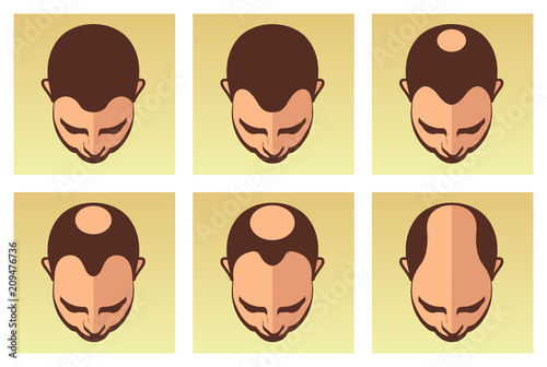 A vector illustration showing different stages of male hair loss Canvas Print