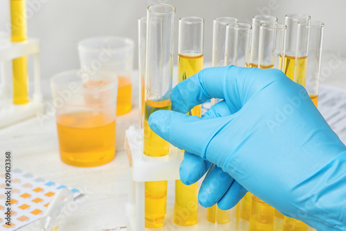 Cuadros en Lienzo  Laboratory worker taking test tube with urine sample from holder, closeup