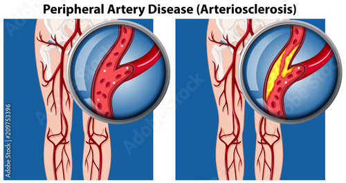 Photo A Comparison of Peripheral Artery Disease