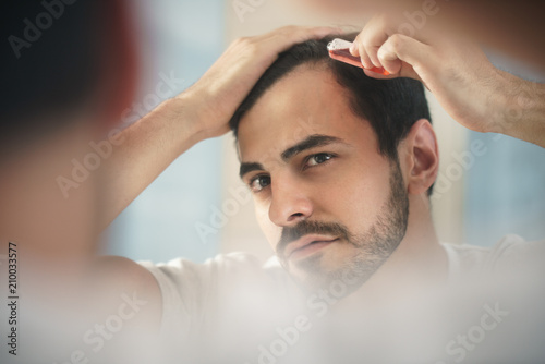 Fényképezés  Young Man Applying Lotion For Alopecia And Hair Loss Treatment