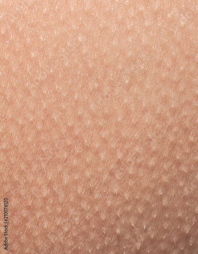 Fotografía human skin covered with small goosebumps of cold and fright close-up