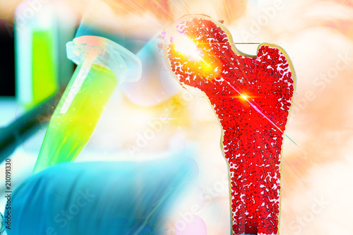 Fotomural Bone research concept bone cancer and stem cells treatment Osteoporosis Bone mar