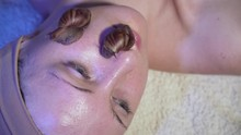 Several Ant Aging Snails On Face Of Woman In Cosmetic Clinic