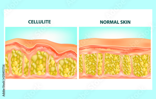 Illustration of skin cross section of Cellulite formation Canvas Print