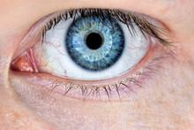 Closeup Of Man's Red Eye. Macro Of Conjunctivitis Or Irritation Red Bloodshot Eye. Sensitive Eye Irritated By Long Work At The Computer