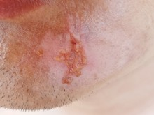 Lesion From Accident On The Face,Men Have Lesion On The Chin.