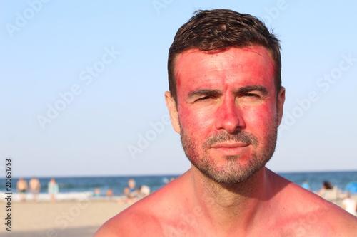 Fotografía  Man with a major skin allergic reaction