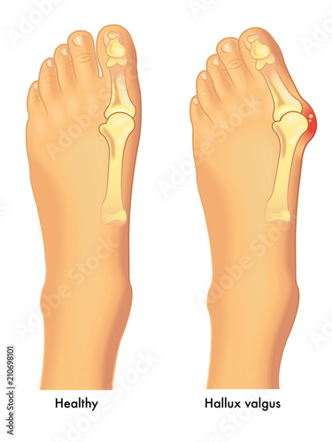 Photo medical vector illustration of a healthy foot in comparison to a foot affixed by