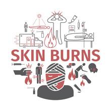 Skinl Burns Kine Banner. Treatment. Vector Illustrations