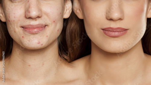 comparition portrait of same woman before and after cosmetic treatment amd makeu Canvas Print
