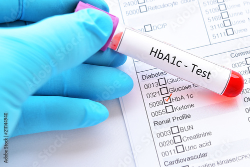 Fotografía Blood sample tube with laboratory requisition form for HbA1c test, diabetes diag