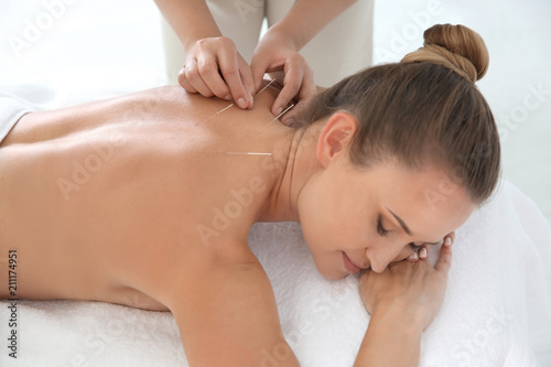 Young woman undergoing acupuncture treatment in salon Canvas Print