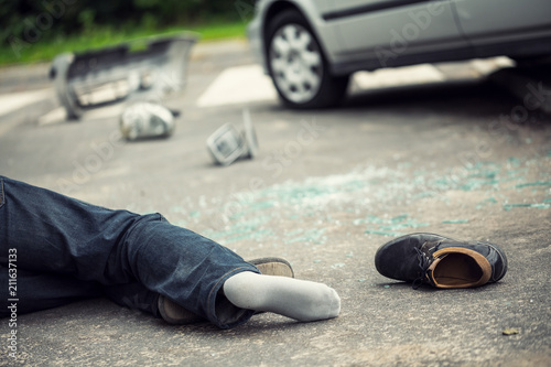 Fotografía  Close-up of dead victim of a traffic incident after hit with a car
