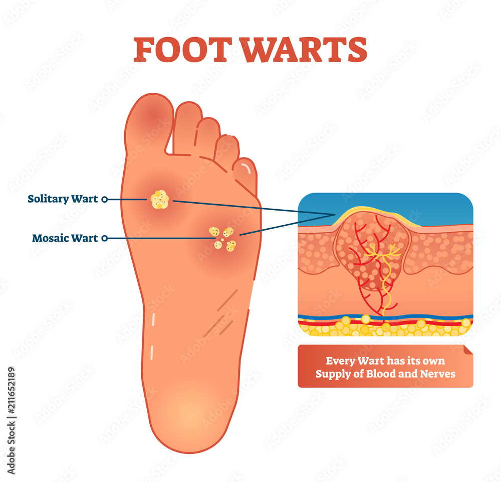 Fototapeta Foot warts vector illustration. Medical scheme with solitary and mosaic warts. Close-up cross section with wart and its own supply of blood and nerves.