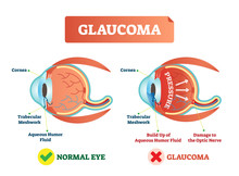 Vector Illustration Of Glaucoma Illness. Cross Section Comparement With Normal And Damaged Eye. Scheme With Cornea, Trabecular Meshwork And Aqueous Humor Fluid.