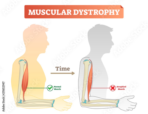 Photo Vector illustration about muscular dystrophy