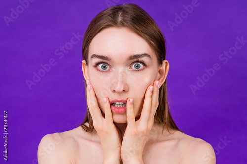 young teen girl acne pimple upset on purple background in studio