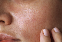 Pores On The Skin Of The Face....