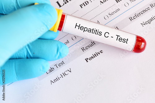Obraz Hepatitis C virus positive test result with blood sample tube - fototapety do salonu