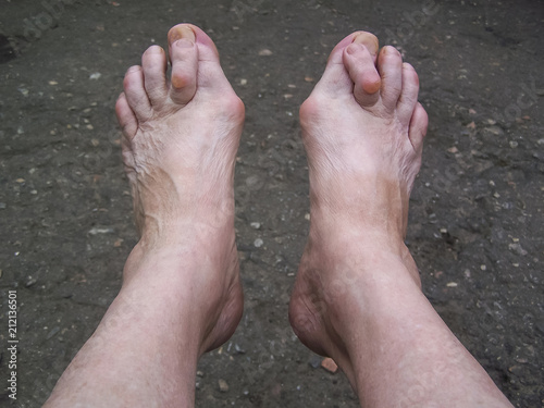 Fotografija  Bare foots which have Hallux Valgus (bunion) problem.