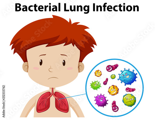 A Boy Bacterial Lung Infection Canvas Print